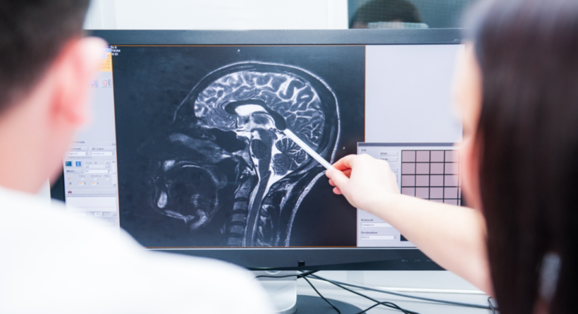 Diagnosing and Treating Brain Injury afteran Accident