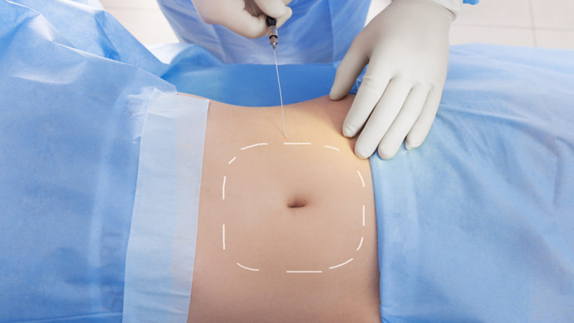What to Anticipate Before and During A Liposuction Surgery Process