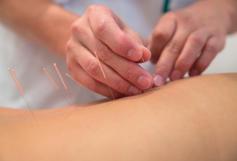 Dry Needling Therapy: What Is It?