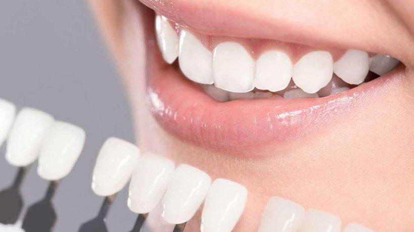 7 Reasons Why Porcelain Veneers Fail