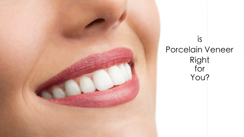 Is Porcelain Veneer Right for You?