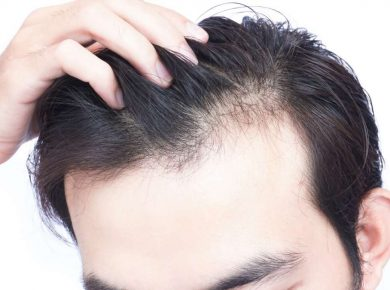 How to Prevent Hair Loss and Shedding
