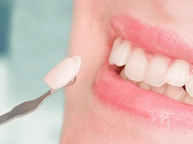 A Complete Useful Guide To Dental Veneers